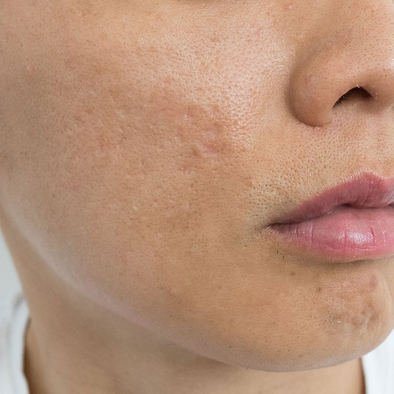 acne scars treatments