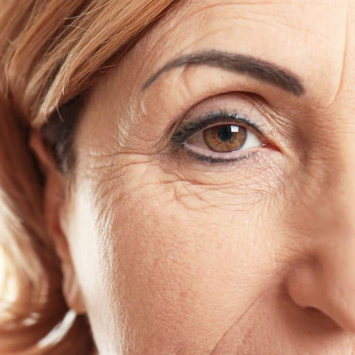 fine line eye wrinkles