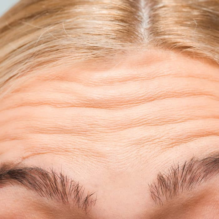 forehead lines and wrinkes
