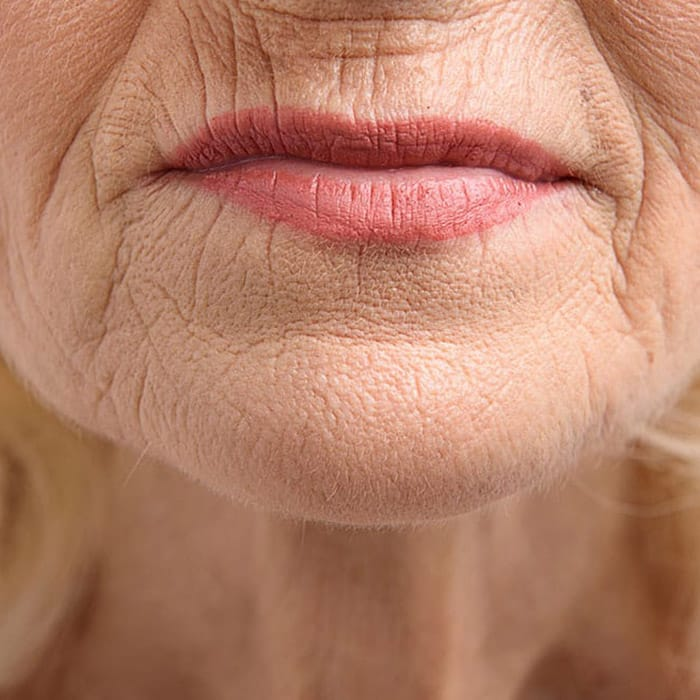 fine lines and wrinkles caused by smoking