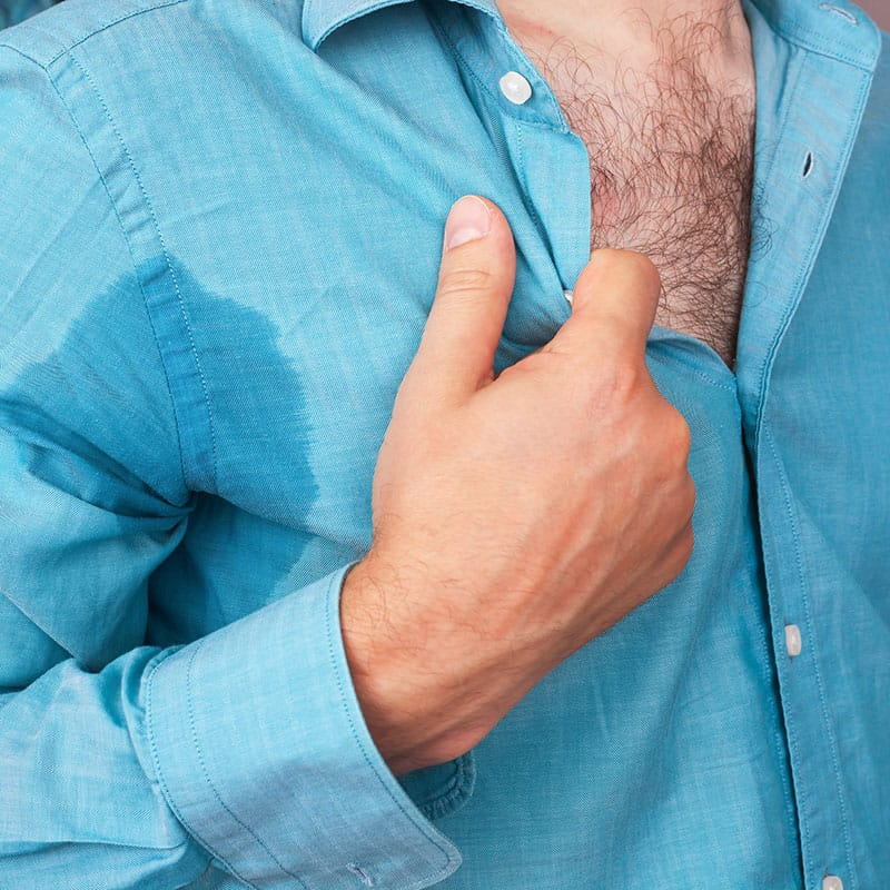 over active sweat glands